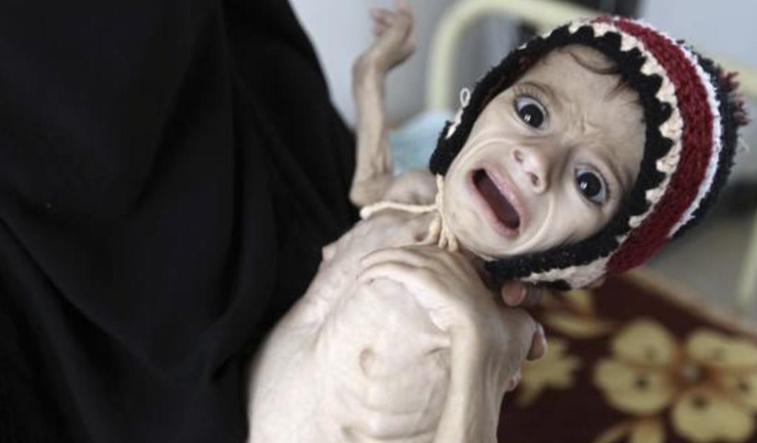 Prima-foto-Slider-Yemen2